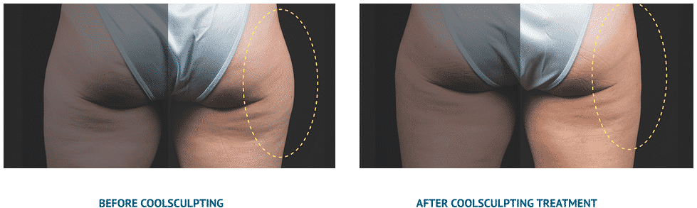CoolSculpting Results | Before and After