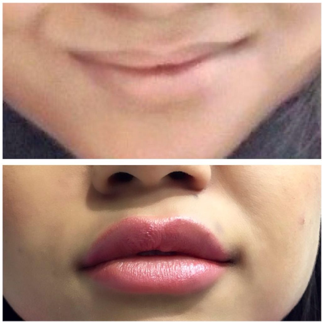 20160405_192144000_iOS-1024x1024 Dermal Fillers | Northern Virginia