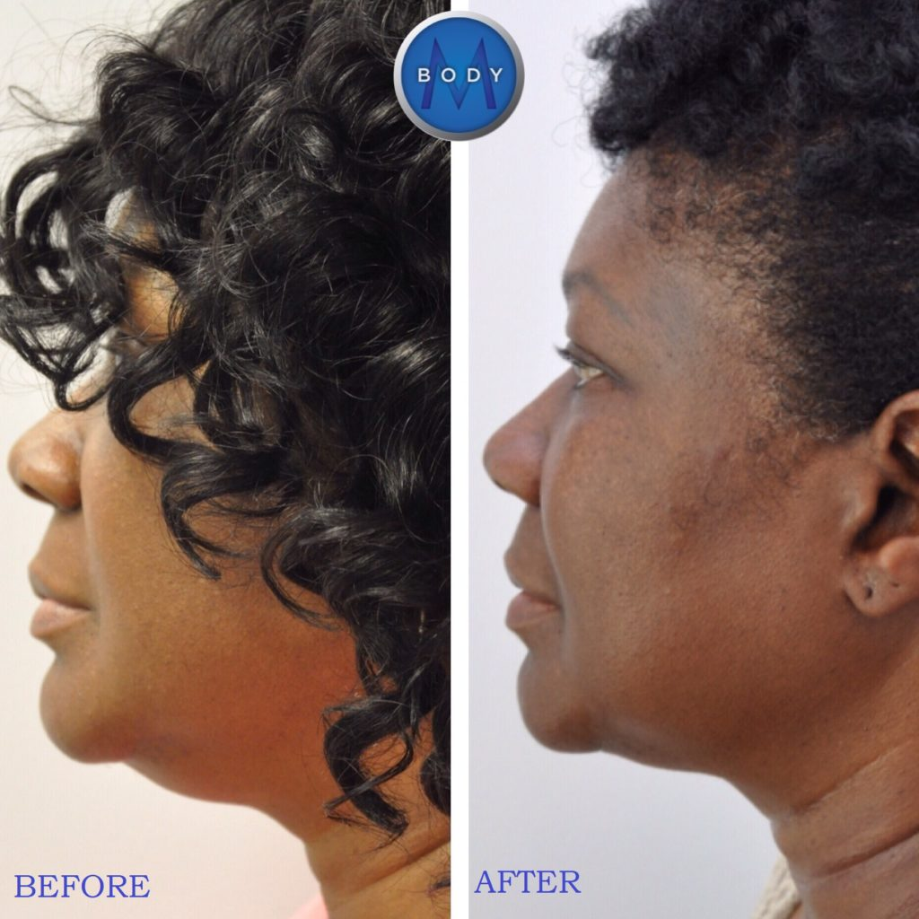 20160818_174134000_iOS-1024x1024 CoolSculpting® | Northern Virginia