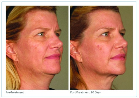 Ultherapy2 Non-Surgical Facelift with Infini and Ultherapy | Northern Virginia