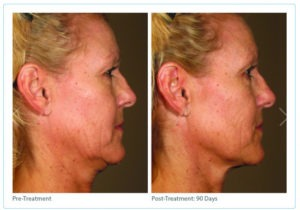 Ultherapy3-300x210 Ultherapy® | Northern Virginia