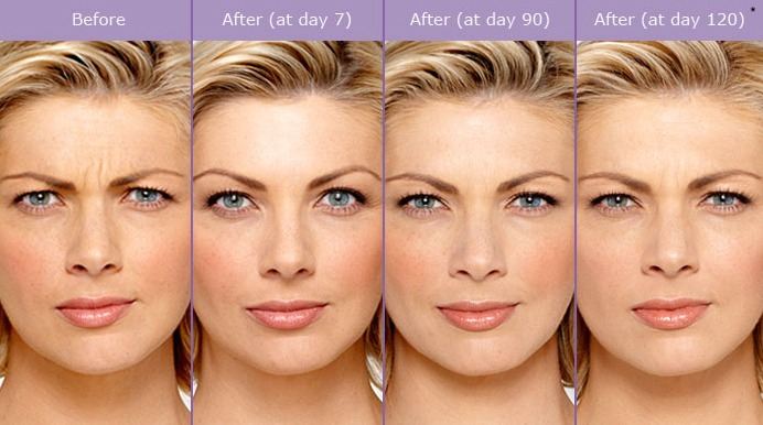 botox-before-and-after-photos1 Botox® Cosmetic | Northern Virginia