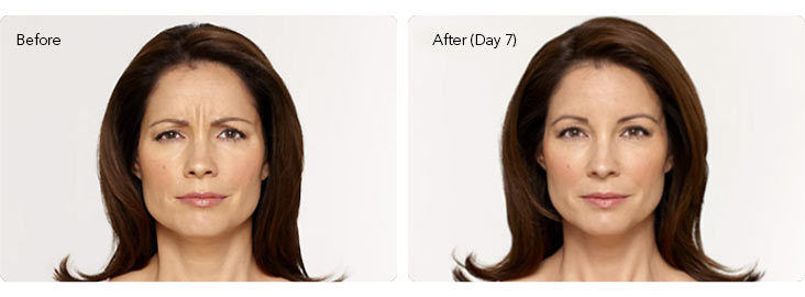 Botox-1a Botox® Cosmetic Before & After Results | Northern Virginia