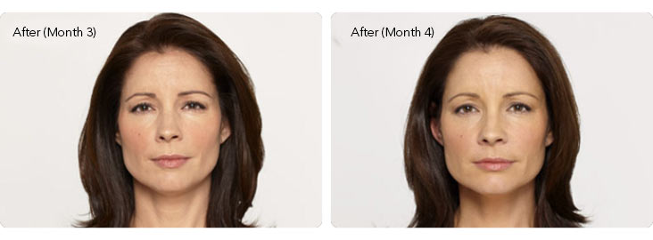 Botox-1b Botox® Cosmetic Before & After Results | Northern Virginia