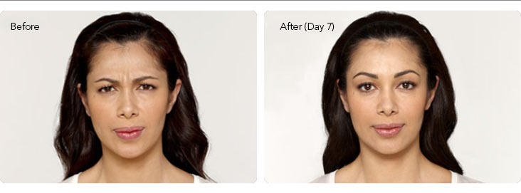Botox-2a Botox® Cosmetic Before & After Results | Northern Virginia