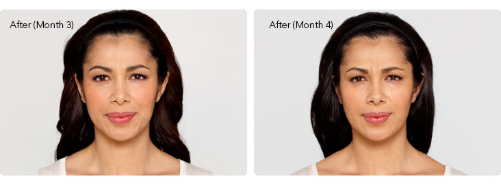 Botox-2b Botox® Cosmetic Before & After Results | Northern Virginia