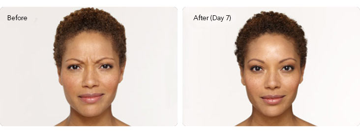 Botox-3a Botox® Cosmetic Before & After Results | Northern Virginia
