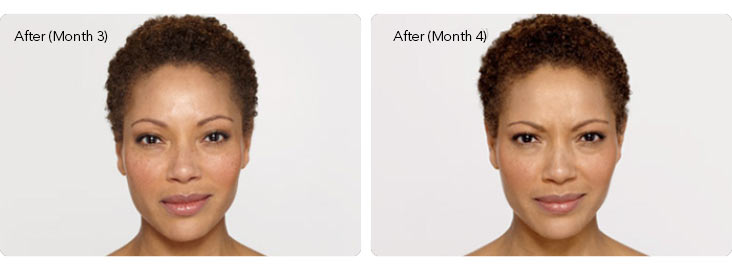 Botox-3b Botox® Cosmetic Before & After Results | Northern Virginia