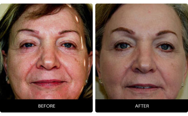 CO2_Laser-1 DOT Therapy™ CO2 Laser Before & After Results | Northern Virginia