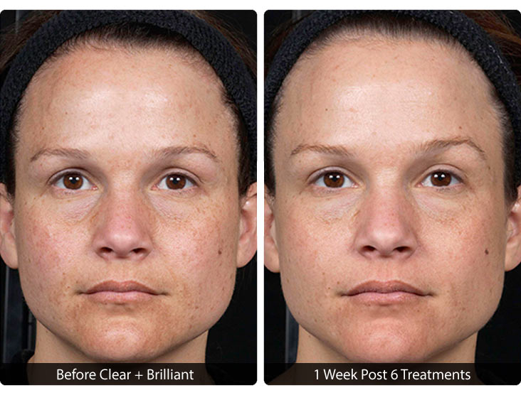 Clear_and_Brilliant-3 Clear + Brilliant® Before & After Results | Northern Virginia