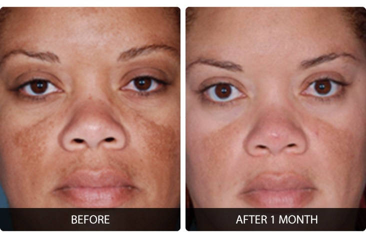 Facial Peel Before After Photos Northern Virginia