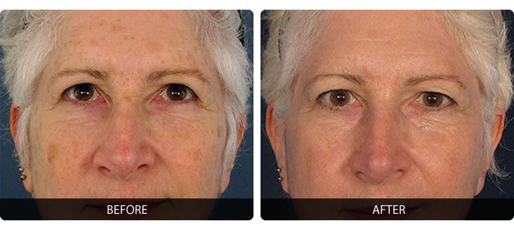 Fraxel-10 Fraxel® Before & After Laser Results | Northern Virginia