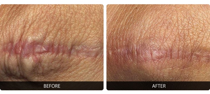 Fraxel-4 Fraxel® Before & After Laser Results | Northern Virginia