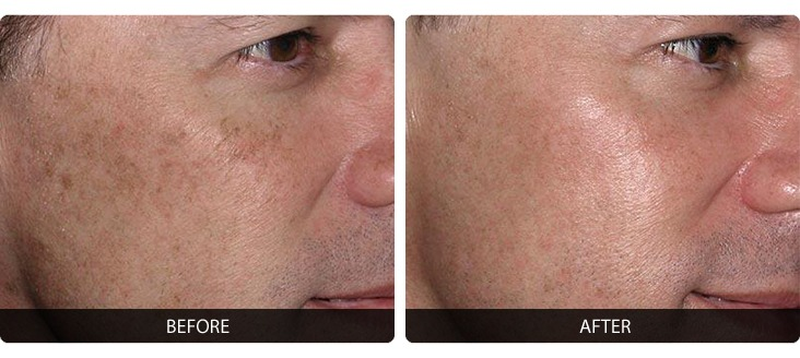 Fraxel-5 Fraxel® Before & After Laser Results | Northern Virginia