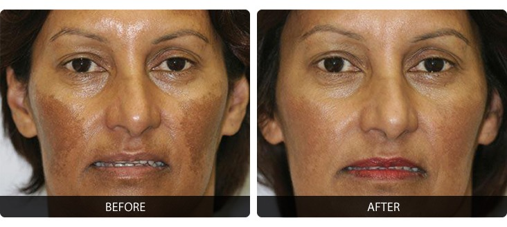 Fraxel-6 Fraxel® Before & After Laser Results | Northern Virginia