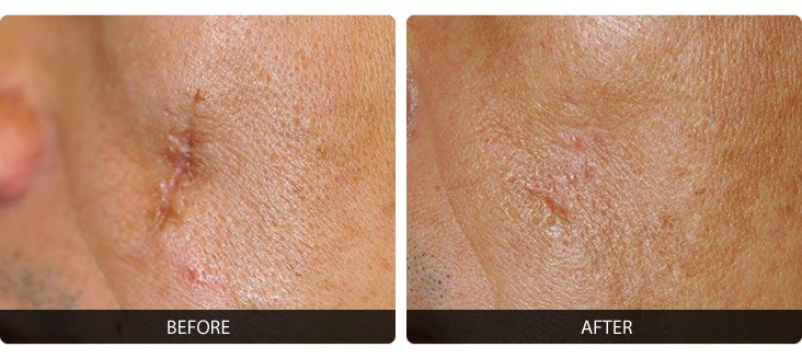 Fraxel-7 Fraxel® Before & After Laser Results | Northern Virginia