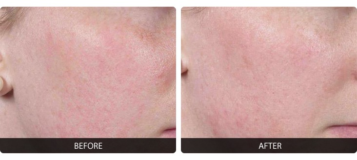 Fraxel-8 Fraxel® Before & After Laser Results | Northern Virginia