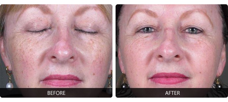 Fraxel-9 Fraxel® Before & After Laser Results | Northern Virginia