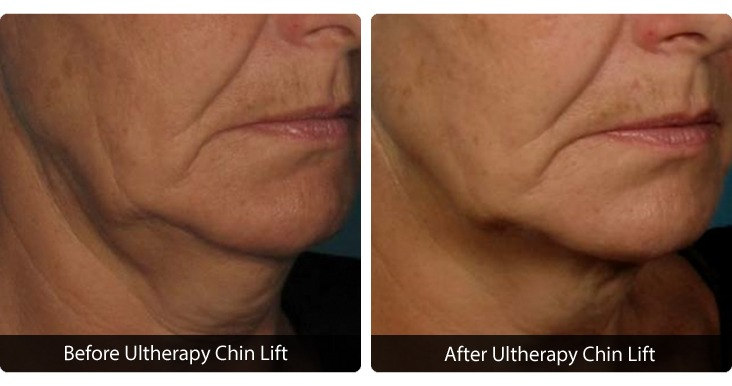 MBody-Template-for-Web-Photos_0011_Slide-30 Ultherapy® Before & After Results | Northern Virginia