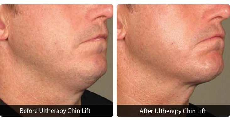 MBody-Template-for-Web-Photos_0019_Slide-22 Ultherapy® Before & After Results | Northern Virginia