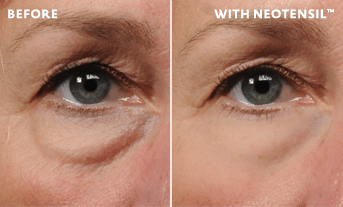 about-right-image Non-surgical eye lift solution for your under-eye bags | Northern Virginia