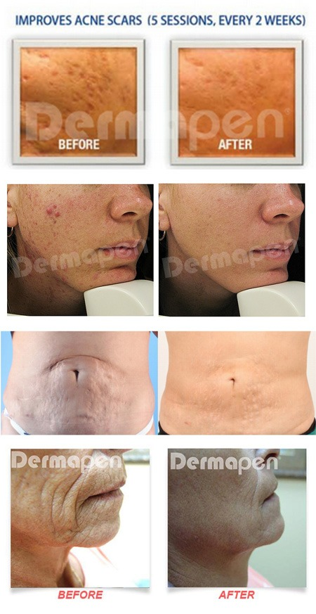 microneedling-b-a Microneedling | Northern Virginia