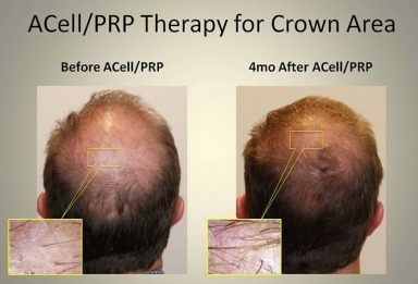 ACell-PRP-Injections-vs-Hair-Transplant Hair Restoration Solution: Platelet Rich Plasma (PRP) Therapy | Northern Virginia