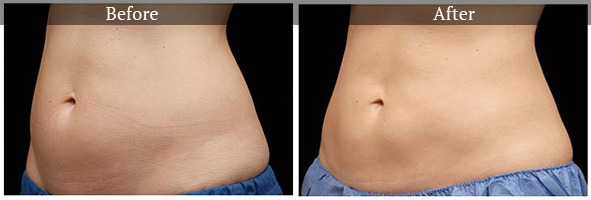 cool-bef-aft1 Surgical & Non-Surgical Liposuction and Body Contouring Internet Special | Northern Virginia