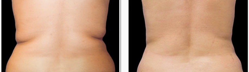 coolsculpting-before-and-after-photo1-1024x298 Surgical & Non-Surgical Liposuction and Body Contouring Internet Special | Northern Virginia