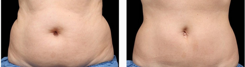 coolsculpting-before-and-after-photos1-1024x282 Surgical & Non-Surgical Liposuction and Body Contouring Internet Special | Northern Virginia