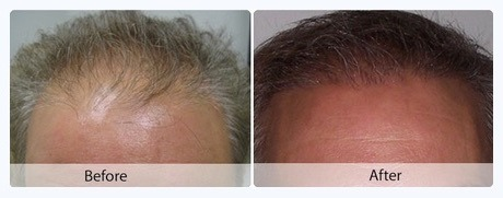 neograft Hair Restoration Internet Pricing | Northern Virginia