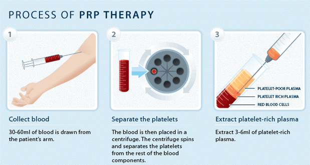 process-of-prp-therapy Growth Factor Hair Stimulation: Non-surgical Hair Loss Treatment (PRP Therapy) | Northern Virginia