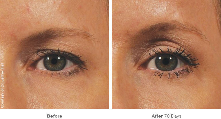 ultherapy-bef-aft Ultherapy Internet Special | Northern Virginia