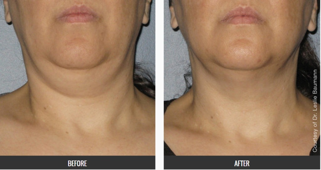 ultherapy-before-and-after-photo-1024x542 Ultherapy Internet Special | Northern Virginia