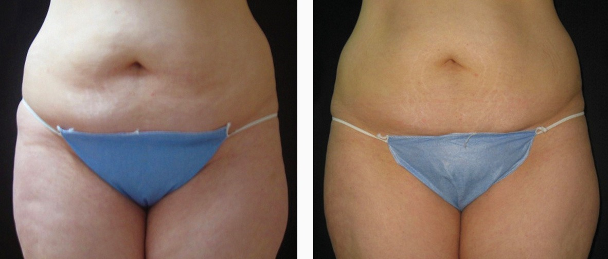 ultrashape-before-and-after-photo UltraShape Internet Special | Northern Virginia
