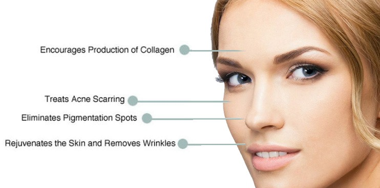 DermaPen-Collagen-Induction-Therapy Microneedling Collagen Induction Therapy | Northern Virginia
