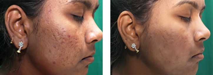 ba-infini-as-2-2015-002 INFINI RF Microneedling Richmond Virginia Plastic Surgeon