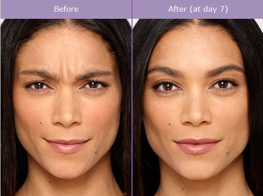 botox-before-and-after-photo BOTOX Before and After Photos | Northern Virginia