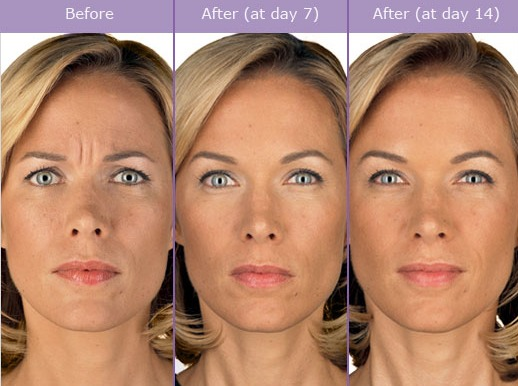 botox-before-and-after-picture BOTOX Before and After Photos | Northern Virginia