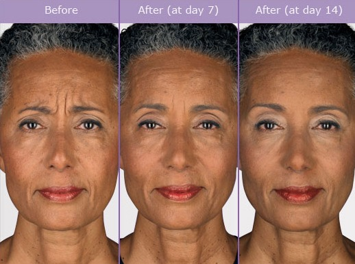 botox-before-and-after-pictures BOTOX Before and After Photos | Northern Virginia
