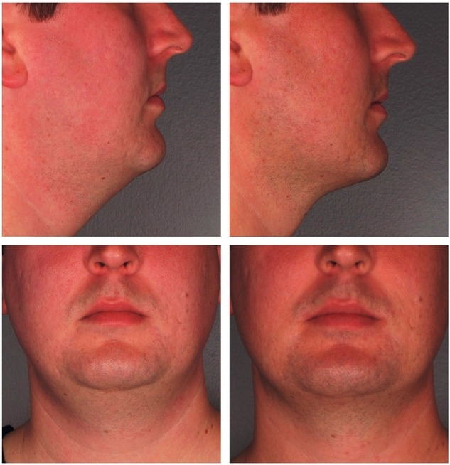 Kybella-Injections-for-Double-Chin-Reduction-Before-After-Photo What are Kybella Chin Fat Reduction Injections? | Northern Virginia