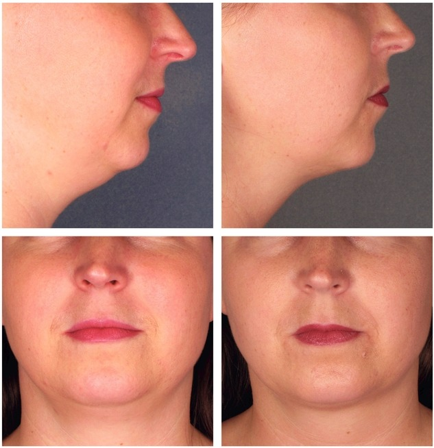 Kybella Injections Reduce Double Chin Northern Virginia