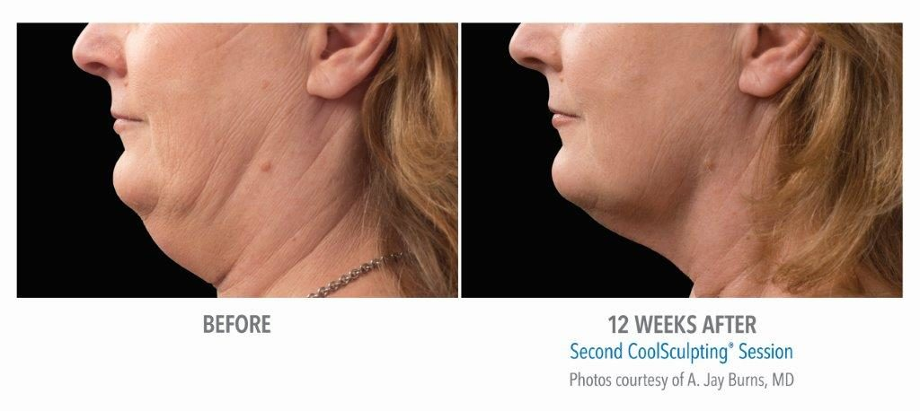 BA-Burns-SM-pt012F-2set-18wk2_LEFT-1024x458 WHY YOU SHOULD CHOOSE DR. SUNDIN FOR COOLSCULPTING? | Northern Virginia