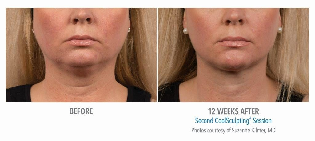 BA-Kilmer-SM-pt020F-2set-18wk2_FRONT-1024x458 Chin Fat Reduction Option: Surgical and Non-Invasive | Northern Virginia
