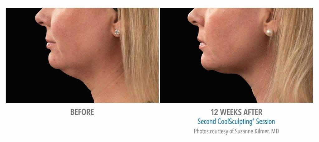 BA-Kilmer-SM-pt020F-2set-18wk2_LEFT-1024x458 Chin Fat Reduction Option: Surgical and Non-Invasive | Northern Virginia