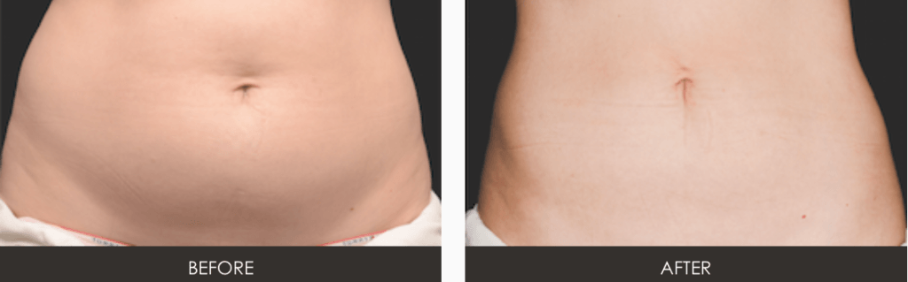 Screen-Shot-2015-05-22-at-10.59.38-AM-1024x319 CoolSculpting Body Contouring | Northern Virginia