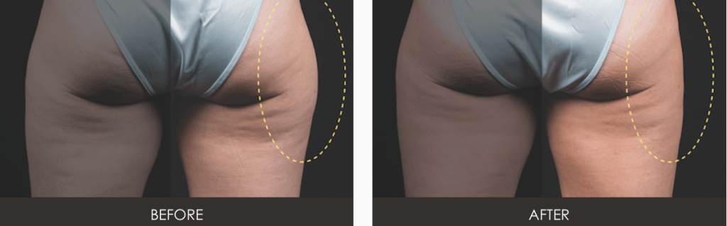 Screen-Shot-2015-05-22-at-10.59.51-AM-1024x319 CoolSculpting Body Contouring Before and After Photos | Northern Virginia