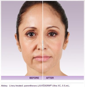 juvederm-4-295x300 Juvederm Voluma Derma Filler Before & After Photos | Northern Virginia