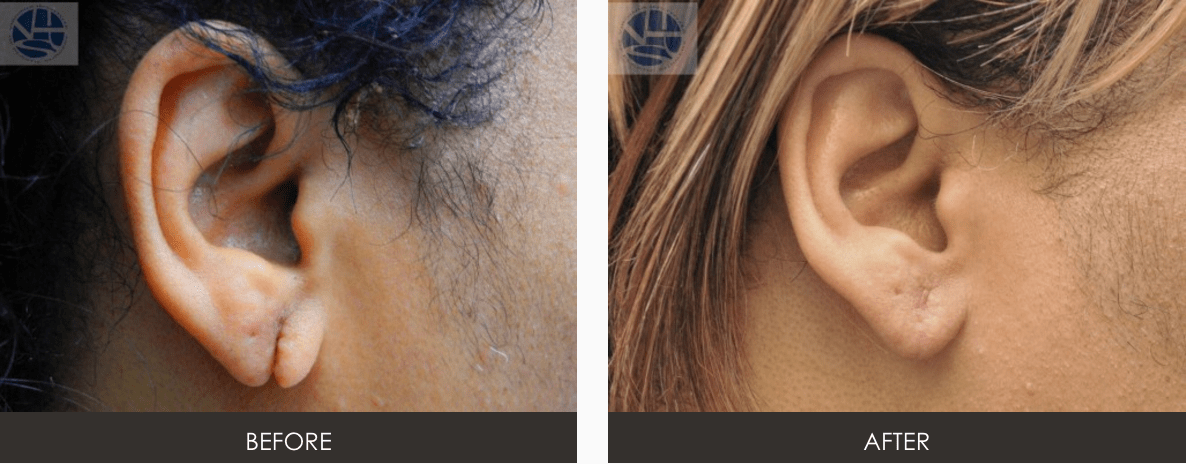 Earlobe Repair | Plastic Surgery | Richmond | Vienna Virginia