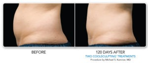 BA-Female-Abdomen-006-copy-300x128 CoolSculpting Fat Removal in Richmond | Northern Virginia